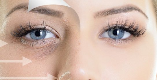 dermal-fillers-for-eye-hollows-blog-image-bhrc