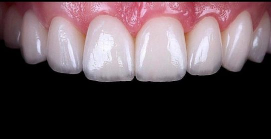 VENEERS ( PLATINIUM PACKAGE )